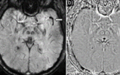 Susceptibility weighted imaging in acute cerebral ischemia: review of emerging technical concepts and clinical applications