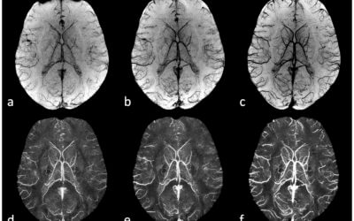 Susceptibility Weighted Imaging: Current Status and Future Directions