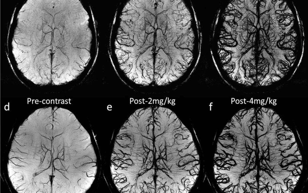 Susceptibility Weighted Imaging and Quantitative Susceptibility Mapping of the Cerebral Vasculature Using Ferumoxytol