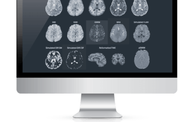Standardization Allows MRI to Overcome Neuroradiology Challenges