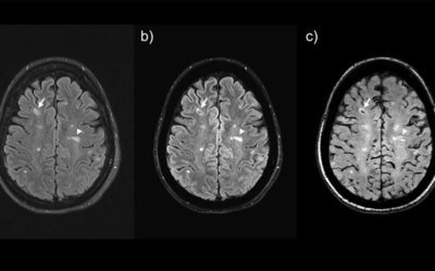 Multiple Sclerosis Detection Use Case