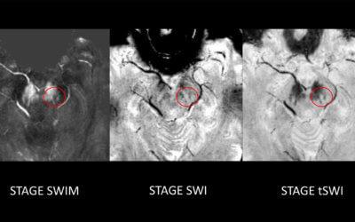 Parkinson's Disease Detection Use Case