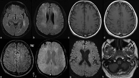 Neuroimaging for COVID-19