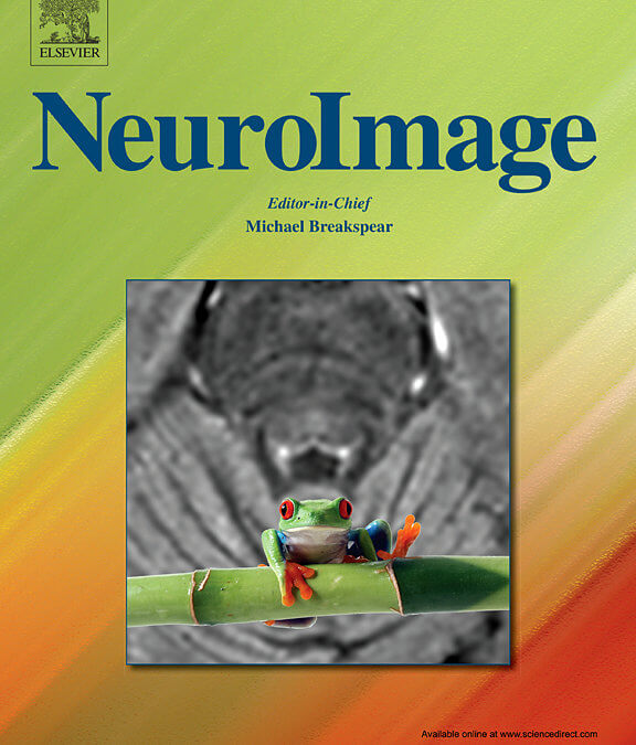 NeuroImage Features STAGE Research on Cover of Sept 2020 Issue