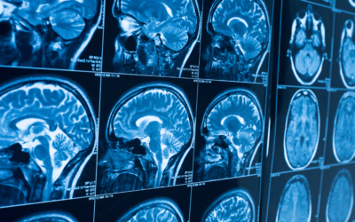 NeuroCOVID's Impact on Standard Radiology Protocols