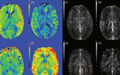 Quantifying the changes in oxygen extraction fraction and cerebral activity caused by caffeine and acetazolamide