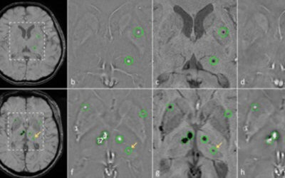 Cerebral microbleed detection using Susceptibility Weighted Imaging and deep learning
