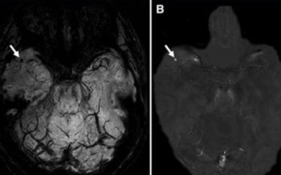 Cerebral Microbleeds in Multiple Sclerosis Evaluated on Susceptibility-weighted Images and Quantitative Susceptibility Maps: A Case-Control Study