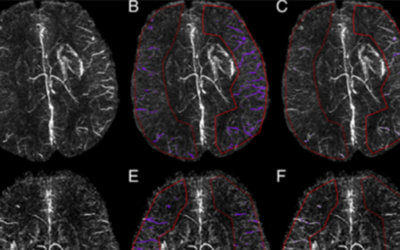 Decreased oxygen saturation in asymmetrically prominent cortical veins in patients with cerebral ischemic stroke