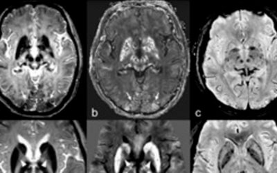 Intracranial iron distribution and quantification in aceruloplasminemia: A case study