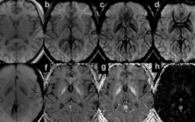 Quantifying iron content in magnetic resonance imaging