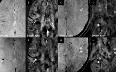 Longitudinal Magnetic Resonance Imaging of Cerebral Microbleeds in Multiple Sclerosis Patients