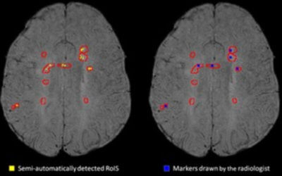 Semi-automatic detection of increased susceptibility in multiple sclerosis white matter lesions imaged with 1.5T MRI