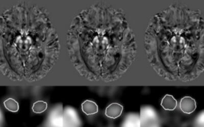 Susceptibility and Volume Measures of the Mammillary Bodies Between Mild Cognitively Impaired Patients and Healthy Controls