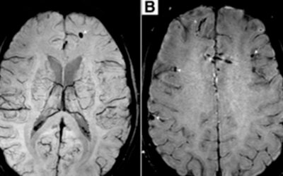 MR imaging findings in mild traumatic brain injury with persistent neurological impairment
