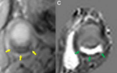 Quantitative Susceptibility Mapping for Characterization of Intraplaque Hemorrhage and Calcification in Carotid Atherosclerotic Disease
