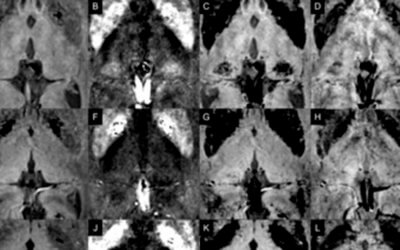 Visualizing the lateral habenula using susceptibility weighted imaging and quantitative susceptibility mapping