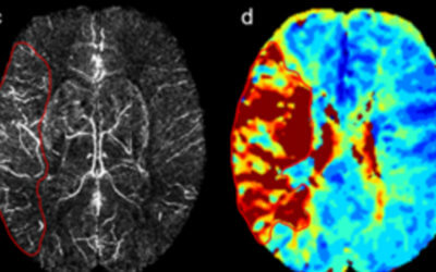 Quantitative susceptibility-weighted imaging may be an accurate method for determining stroke hypoperfusion and hypoxia of penumbra