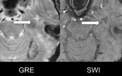 Susceptibility-Weighted Imaging is More Reliable Than T2*-Weighted Gradient-Recalled Echo MRI for Detecting Microbleeds