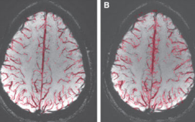 Assessment of Brain Venous Structure in Military Traumatic Brain Injury Patients using Susceptibility Weighted Imaging and Quantitative Susceptibility Mapping