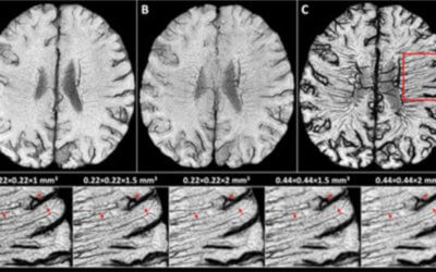 Revealing vascular abnormalities and measuring small vessel density in multiple sclerosis lesions using USPIO