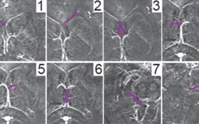 Cerebral Hemodynamic Changes of Mild Traumatic Brain Injury at the Acute Stage
