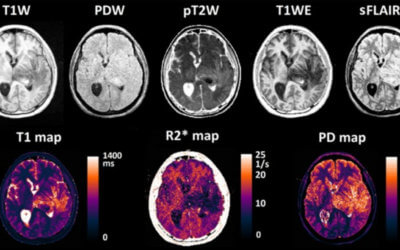 Rapid multicontrast brain imaging on a 0.35T MR-linac